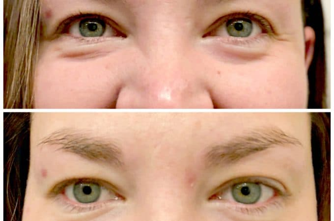 30 Days of Amazing Change with VIICode Oxygen Eye Cream