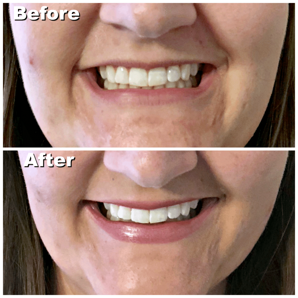 Does Smile Brilliant Actually Work? Affordable at home whitening systems, whitening systems for sensitive teeth, how does smile brilliant work, custom teeth whitening systems, affordable custom teeth whitening systems, Smile brilliant giveaway
