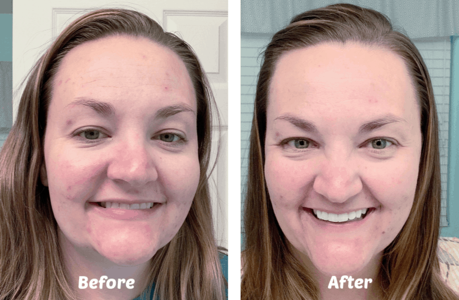 Before and After Image Skincare
