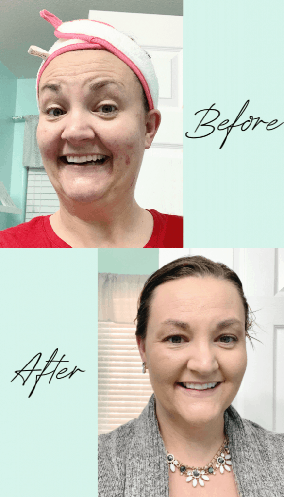 Before and After Skin Recharge