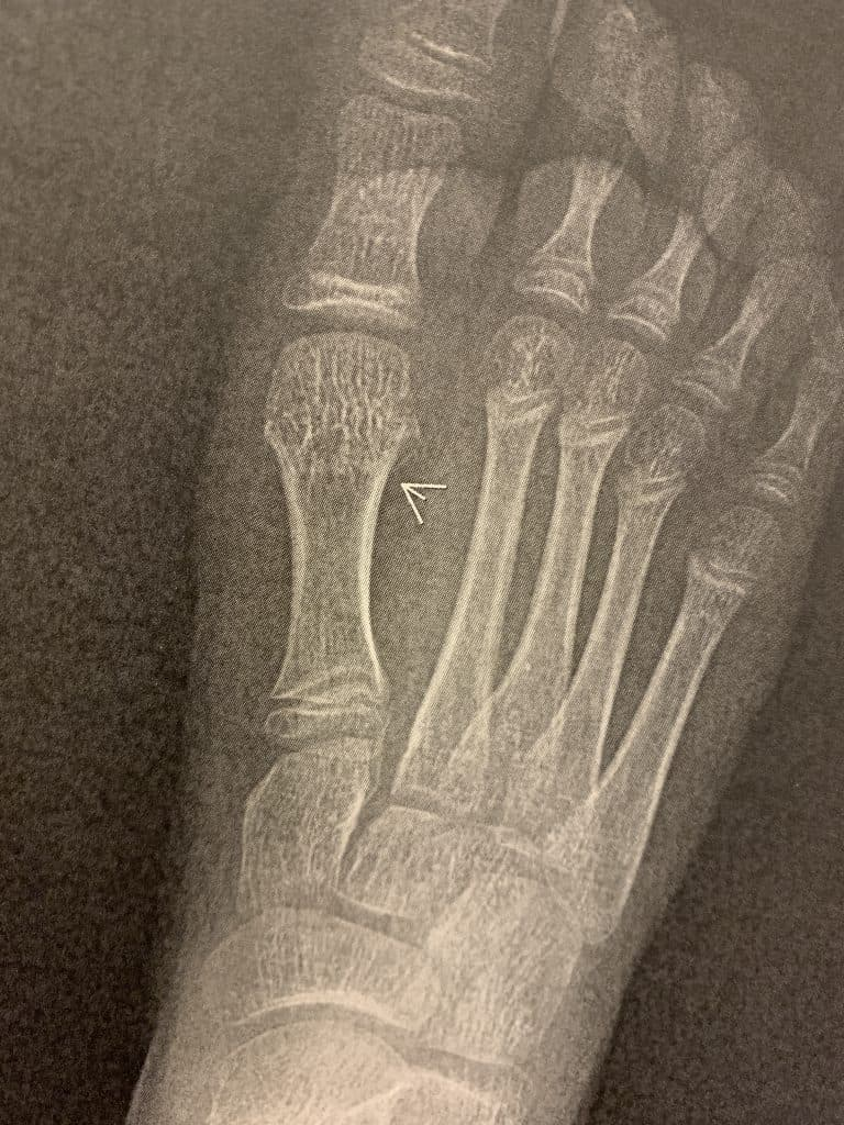 Buckle Fracture X-Ray
