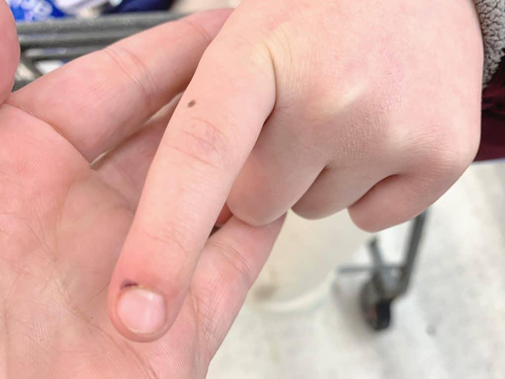 Finger smashed in car door