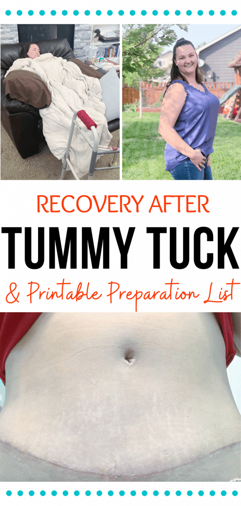 Recovery & Tummy Tuck Preparation List